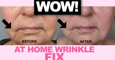 Home Wrinkle Treatment