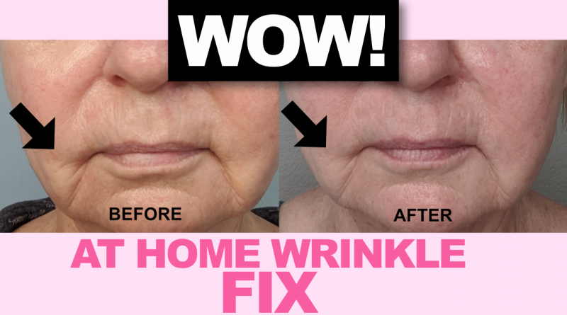 Home Wrinkle Treatment